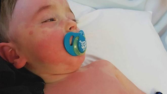 Cảnh báo viêm đa hệ thống chết người ở trẻ em nếu mắc Covid-19