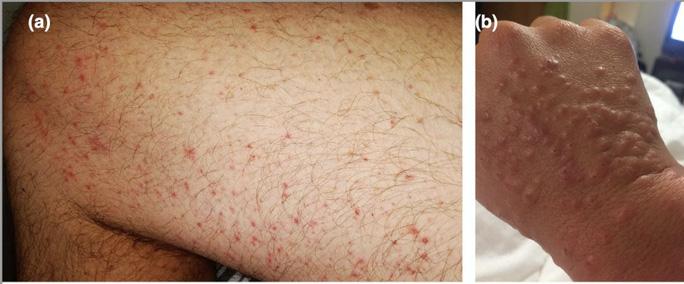 Bác sĩ chỉ 5 dấu hiệu điển hình trên da người mắc Covid-19